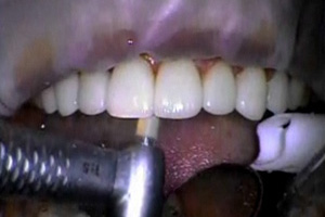 Indirect porcelain veneers Part III: The seat Dental CE Video Course by Dr. John Weston, DDS, FAACD
