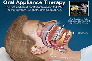 Finding and Treating Sleep Apnea in Your Practice Dental CE Video Course by Dr. Kent  Smith, DDS