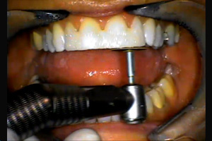 Smile Design: The Mock-up. Dental CE Video Course by Michael Koczarski, DDS