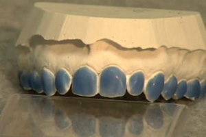 Zero Sensitivity Bleaching Dental CE Video Course by Martin Zase, D.M.D., M.A.G.D.