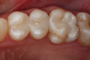 Direct Posterior Resin Restorations Dental CE Video Course by Dr. Ross Nash, DDS