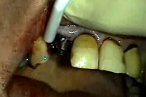Implants with Immediate Restoration Dental CE Video Course by Dr. John S. Levy
