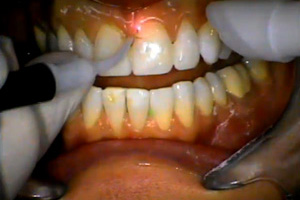 Smile Design: The prep and seat. Dental CE Video Course by Michael Koczarski, DDS