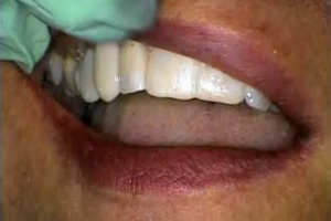 Trial Smile Dental CE Video Course by Dr. Susan Hollar, DDS