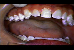 Using Lasers in Conservative Veneer Smile Designs Dental CE Video Course by Dr. Hugh Flax, DDS